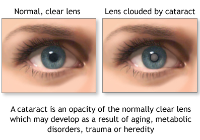 example of cataracts eye condition