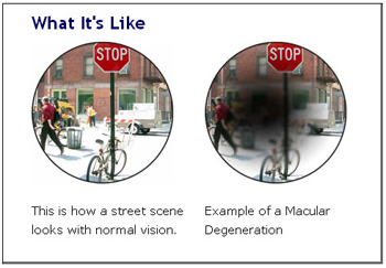 Age-related Macular Degeneration (AMD) example graphic