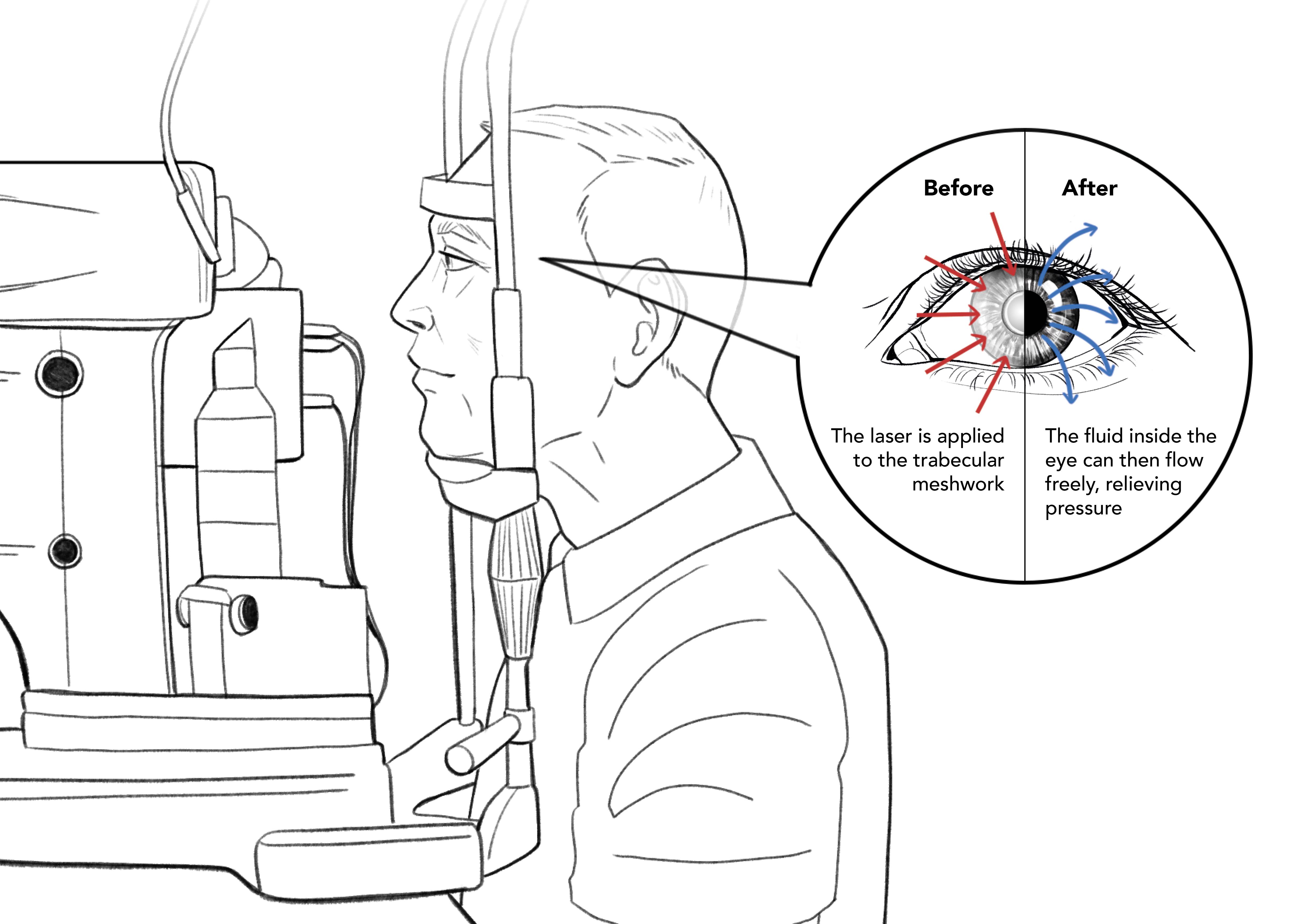 Diagram of Selective Laser Trabeculoplasty (SLT)