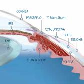 PRESERFLO MicroShunt diagram